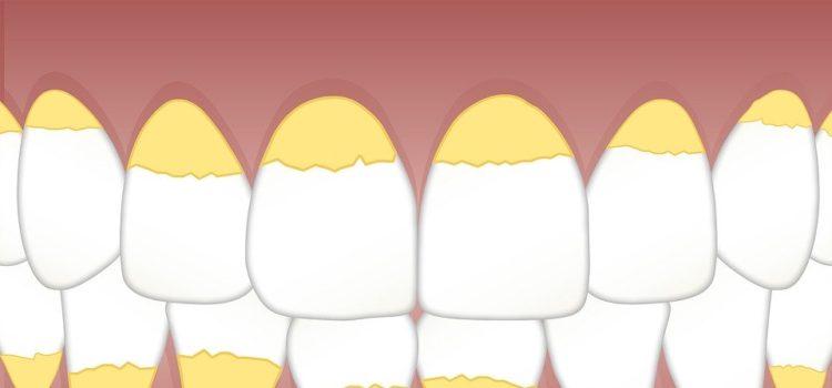 Ako vyzrieť na zubný kameň